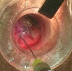 foto operación hemorroide interna grado1