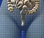 Imagen de vena anal ensangrentada